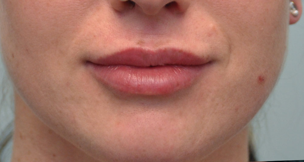 Lip Injections Amp Augmentation Calgary Lip Fillers