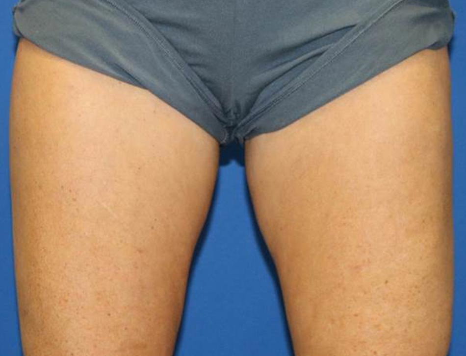 Inner thighs 6 Weeks after 1 Treatments