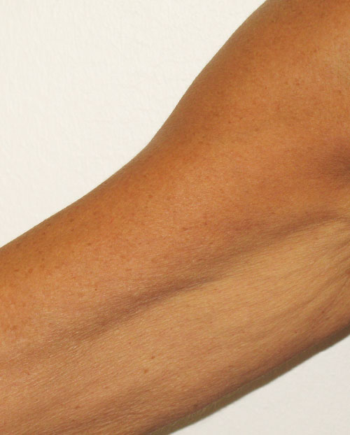 Venus Legacy Arms After 6 Treatments