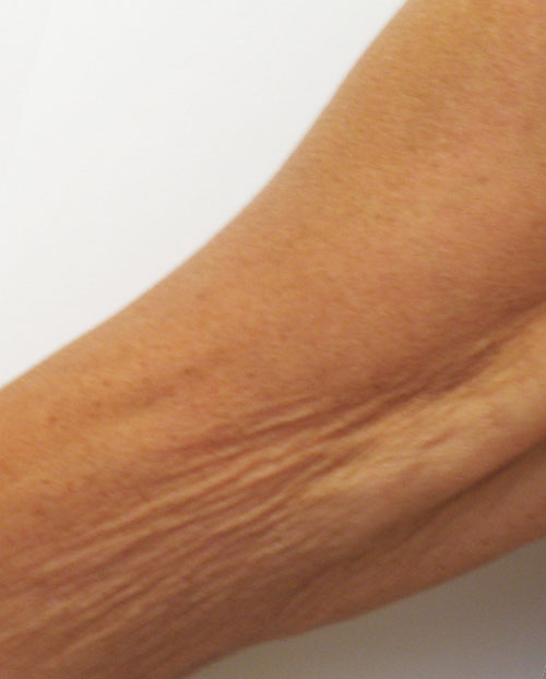 Venus Legacy Arms Before 6 Treatments