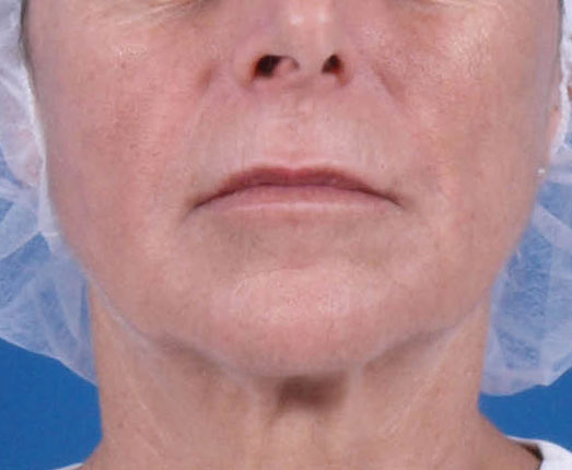 Venus face and neck after 10 treatments