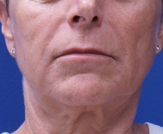 Venus face and neck before 10 treatments
