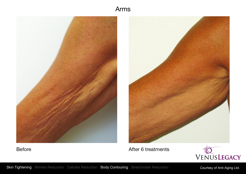 Venus Legacy Amp Venus Viva It Doesn T Have To Hurt To